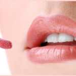 Tips to Heal Chapped Lips | Chapped Lips Remedy