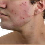 Fight Acne- Tips to Reduce Acne (Pimples)