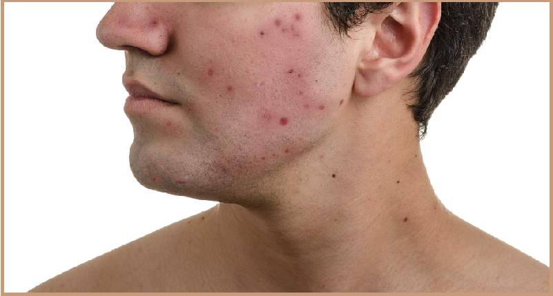 Tips to Reduce Acne