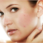 Natural Remedies to Get Rich of Dark Spots
