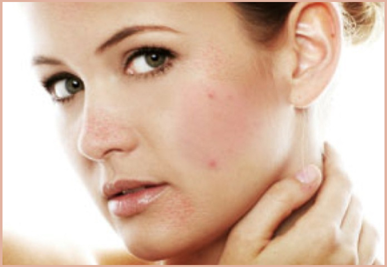 natural remedies for dark spots on face