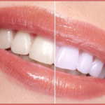 Natural Remedies to Get a Pearly Smile